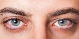 Przyczyny zespołu suchego oka